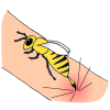 Bee Sting Picture