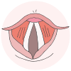 Vocal Folds Picture