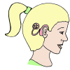 Cochlear Implants Picture